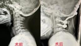 我院脊柱外科成功为一例复杂颅颈交界区畸形患儿实施手术治疗